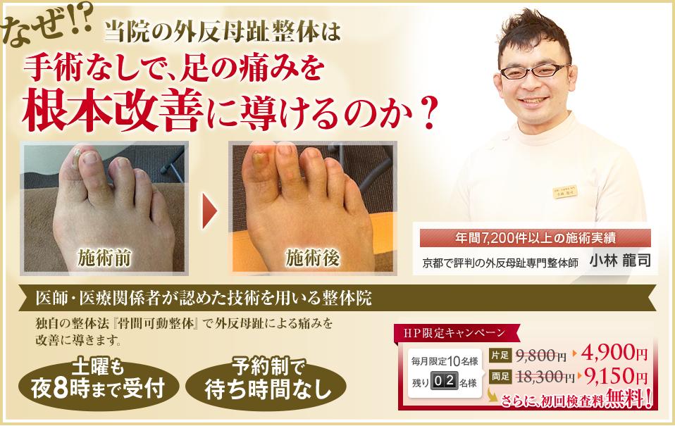なぜ!?当院の外反母趾整体により長年悩んだ足の痛みを手術なしで根本的に改善できるのか?