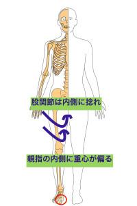 股関節内旋 のコピー