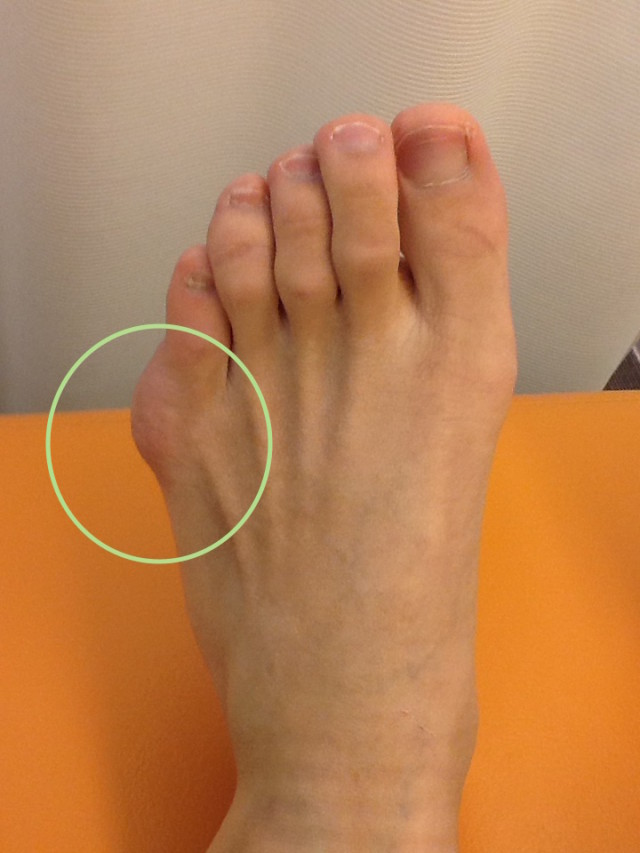 付け根 小指 痛い 足 の の 痛風の症状は足の小指にも出る?発作が起きたらどうする?